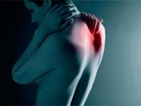 Изображение - Синдром импиджмент плечевого сустава лечение rak-pozvonochnika