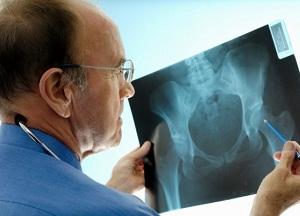 методы лечения синовита тазобедренного сустава