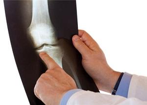 Все про болезнь Кенига коленного сустава
