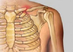 как лечить перелом ключицы со смещением