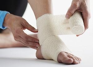 как лечить растяжение связок голеностопа в домашних условиях