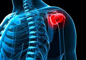 плечелопаточный периартрит комплекс упражнений попова