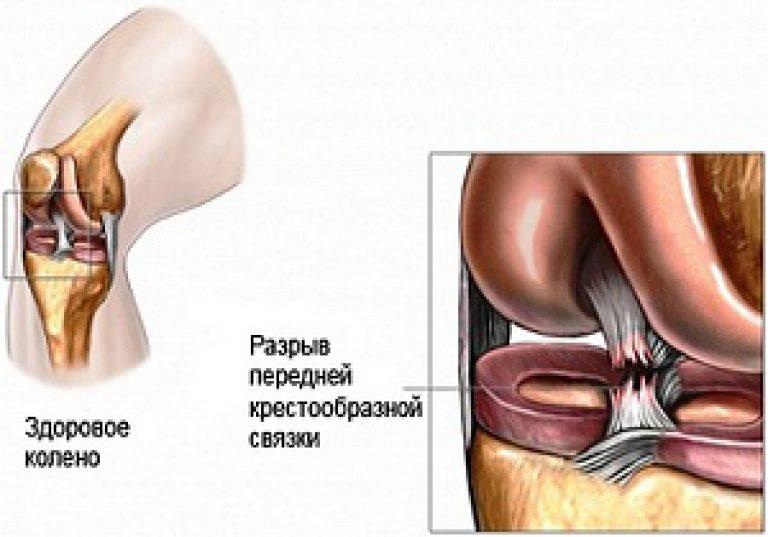 повреждения коленного сустава реабилитация