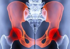 коксартроз тазобедренного сустава симптомы и лечение