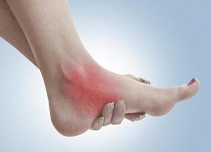 Боль в голеностопном суставе при ходьбе на каблуках гигрома коленного сустава как лечить