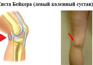 киста бейкера коленного сустава лечение народными методами