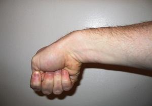 тендовагинит сухожилия