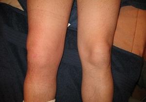 воспаление коленного сустава лечение