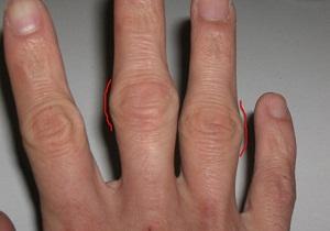 артроз суставов пальцев рук лечение