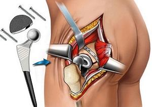 эндопротезирование тазобедренного сустава отзывы пациентов