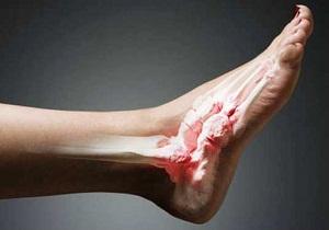 вывих ноги симптомы