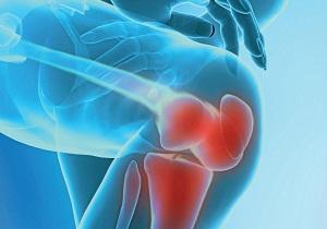 артроз 3 степени коленного сустава лечение,