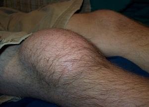 методы лечения бурсита коленного сустава