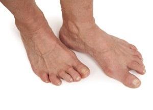 методы лечения артроза стопы
