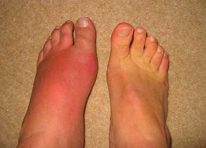 как лечить воспаление суставов ног
