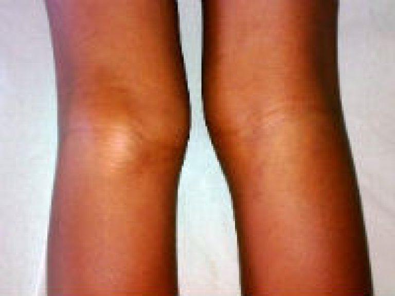 кисты бейкера коленного сустава размеры