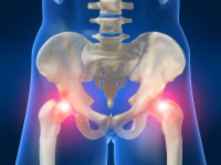 каким народным средством лечить остеоартроз суставов