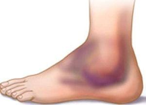 правила лечения вывиха ноги в районе щиколотки