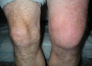 как избавиться от жидкости в коленном суставе