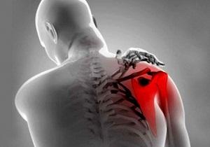 как лечить тендинит плечевого сустава