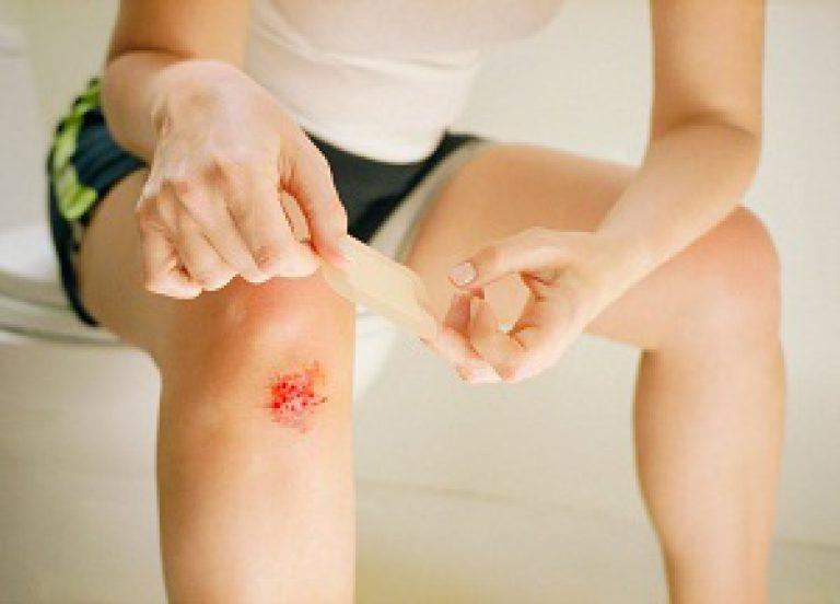 Что делать если содрала кожу на коленке