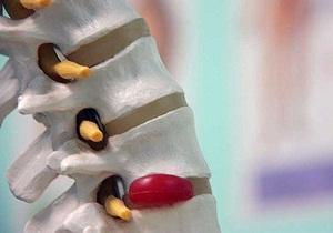 межпозвоночная грыжа поясничного отдела симптомы и лечение