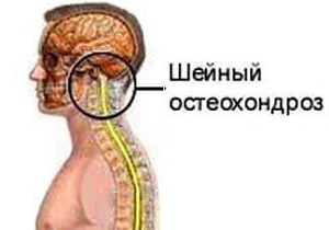 Эффективное лечение шейно грудного остеохондроз