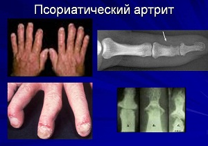 псориатический артрит лечение