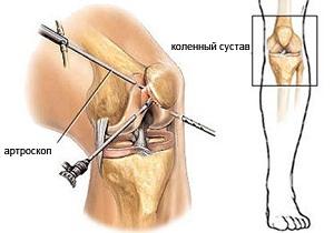 артроскопия коленного сустава цена