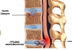 интракорпоральные грыжи шморля