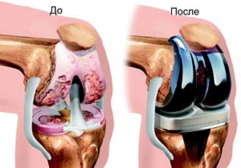 протезирование тазобедренного сустава цена челябинск