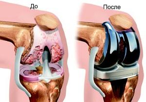 восстановление после эндопротезирования