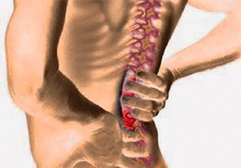 Остеохондроз. Отзывы о лечении остеохондроза 88