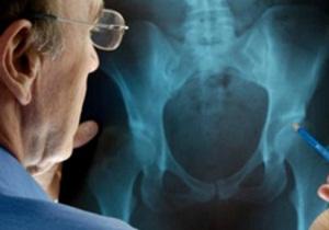 асептический некроз головки бедренной кости лечение