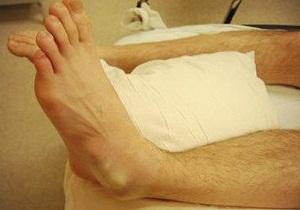 вывих голеностопа лечение дома