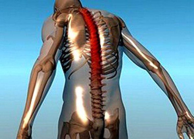 анкилозы крупных суставов