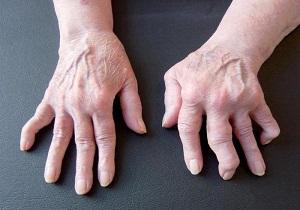 метотрескат при ревматоидном артрите отзывы