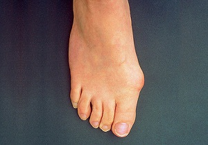 чем снять воспаление сустава большого пальца ноги