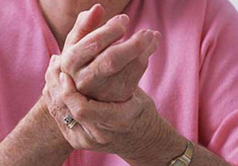 какое заболевание распухшие суставы рук