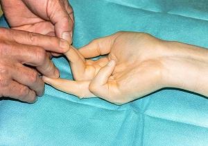 контрактура дюпюитрена лечение в домашних условиях