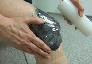 остеоартроз коленного сустава 2 степени лечение