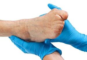 вальгусная деформация больших пальцев стоп лечение