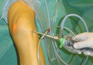 артроскопия коленного сустава отзывы