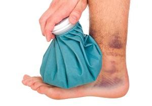 первая помощь при вывихе голеностопного сустава