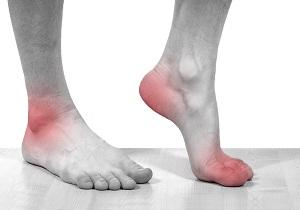 отложение солей на ногах