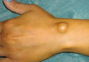 гигирома кисти лечение