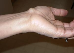 как лечить гигрому лучезапястного сустава