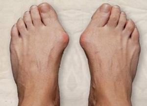 методы лечения вальгусной деформации пальцев без операции