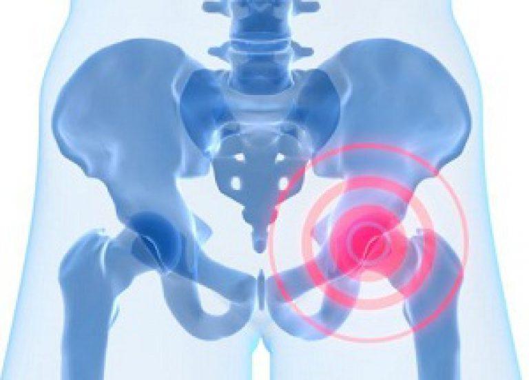 состояние после эндопротезирования тазобедренного сустава мкб 10