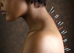 как лечить шейный остеохондроз иглоукалыванием